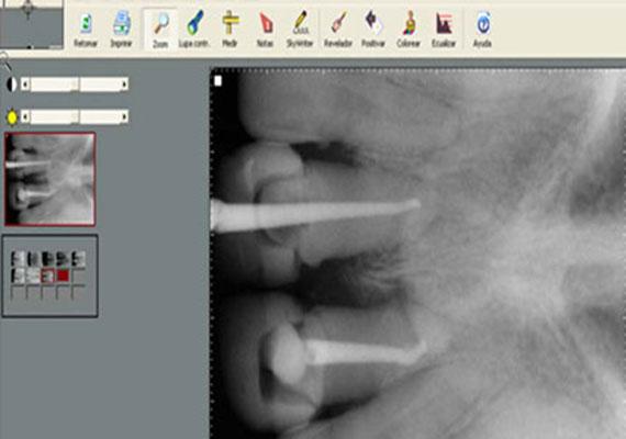 Radiolog a digital tecnolog a arrfox atenci n dental for Clinica condesa citas
